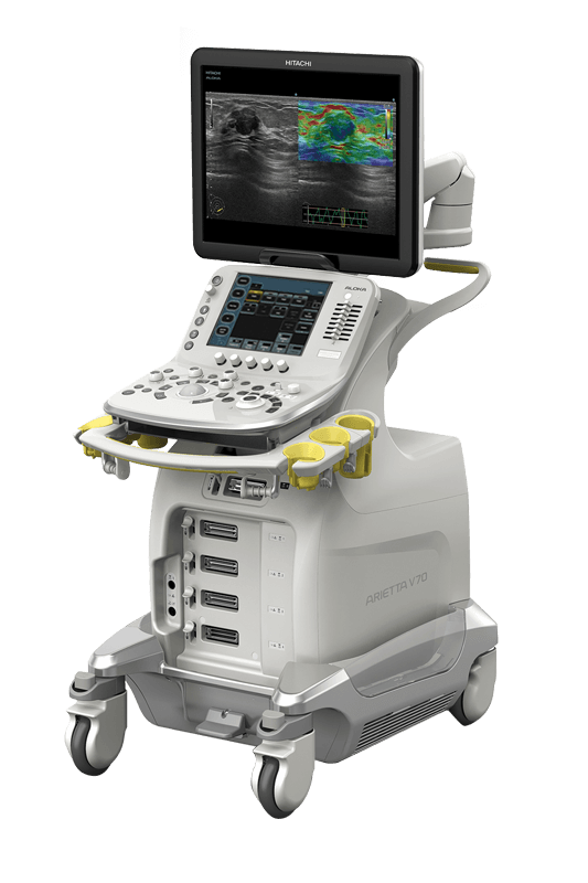 Intra-Operative Ultrasound Machine